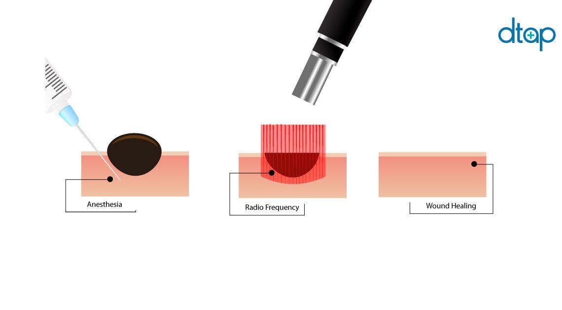 mole-removal-procedure-malaysia