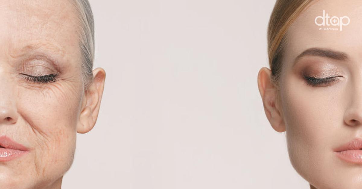 How To Avoid Oxidative Stress For Beautiful Skin Beauty Tips Dtap Clinic Kuala Lumpur