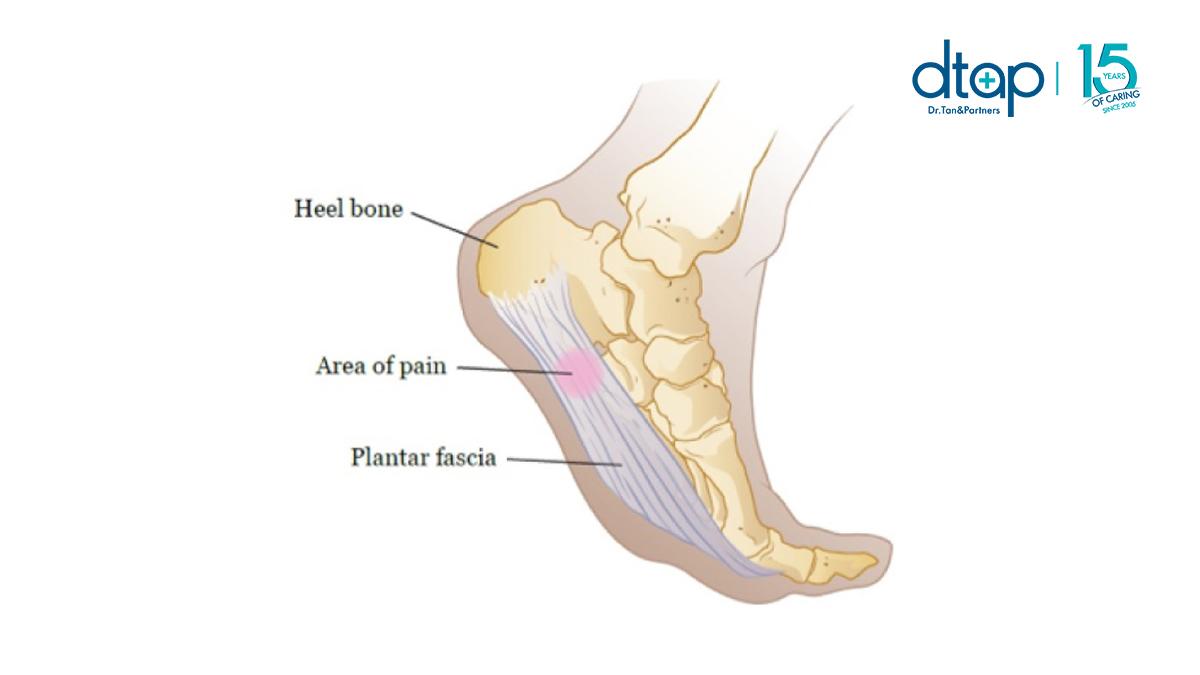 Plantar Fasciitis foot