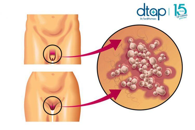 Genital herpes KL